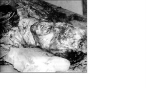 Bosnian Serb murdered and mutilated by Oric's troops