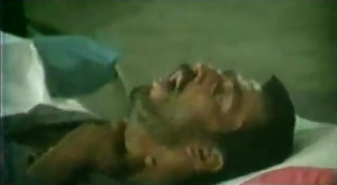 AgoraBeograd ObL63 IRANIAN SOLDIER POISONED by SADDAM + US  GAS +Gulf War Syndrome- Killing Our Own 2